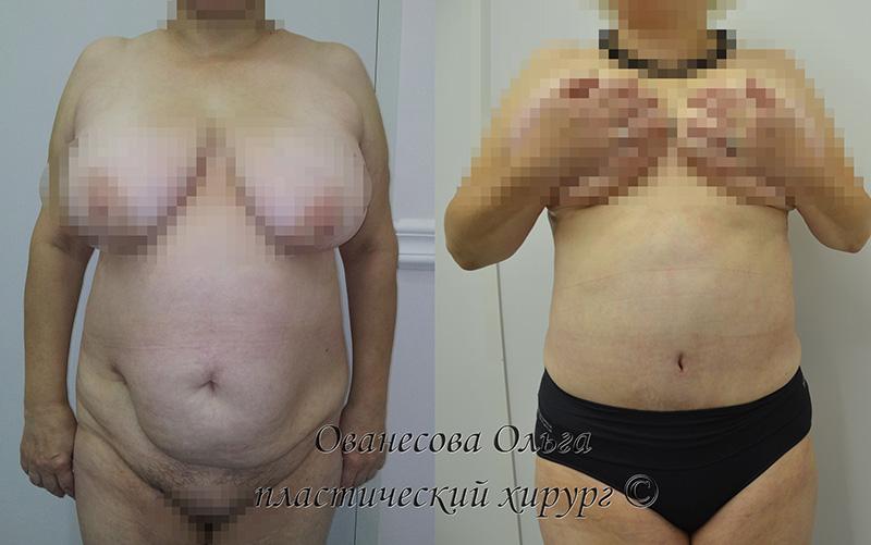 Как увеличить грудь на 1 размер за одну неделю дома