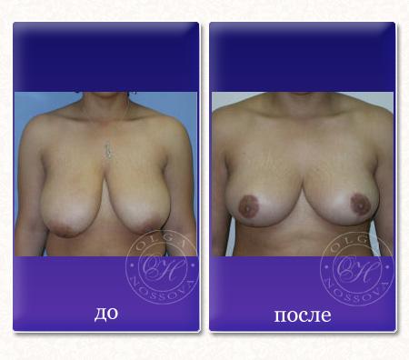 Какой имплант вставить груди