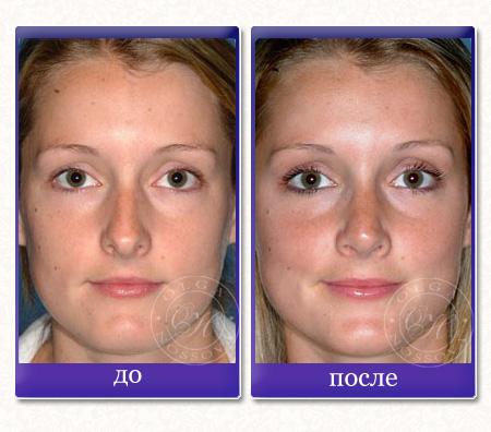 Ринопластика пластика носа